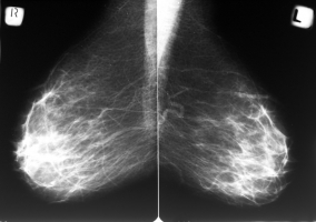 Mammogram [Forrs: Depositphotos]