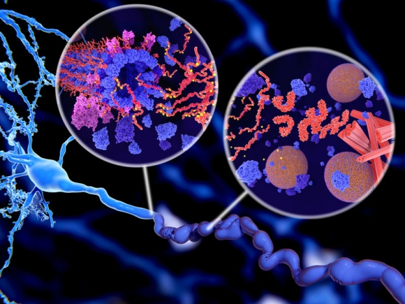 Alzheimer's disease. Pathological Tau protein (red-orange) phosphorylation (yellow) leads to disintegration of microtubuli and aggregation to neurofibrillary tangles (orange) in a neuron axon. The transport of synaptic vesicles(spheres) is disrupted. /Fotó: 123rf.com/